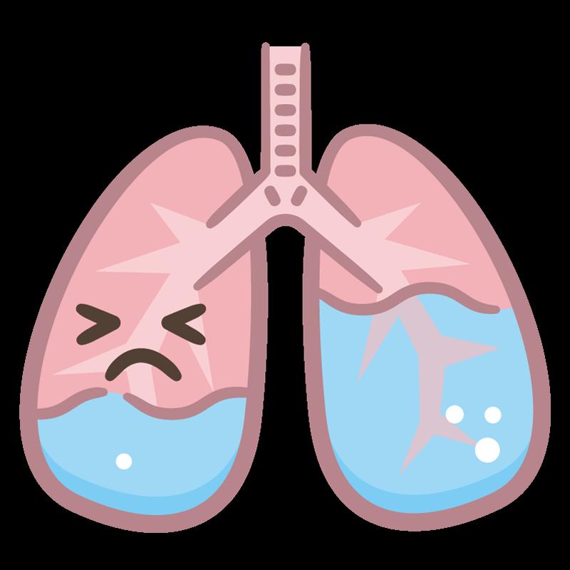 肺水腫是什麼