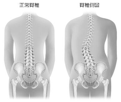 脊椎側彎_正常與異常範例圖