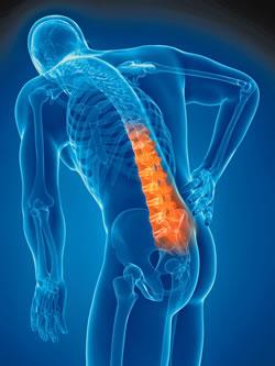 下背痛治療與症狀介紹