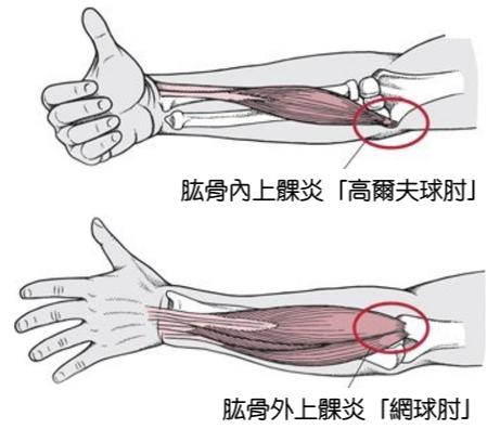 兩種不同類型的手肘疼痛,分別為內側疼痛的高爾夫球肘與外側疼痛的網球肘